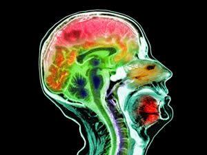 marijuana alzheimers